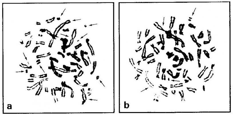 Lymphocytes d'un cosmonaute ayant séjourné 6 mois à bord de MIR montrant des anomalies chromosomiques (ruptures et réarrangements)